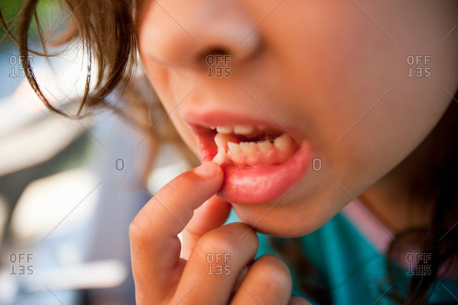 Girl touching loose tooth