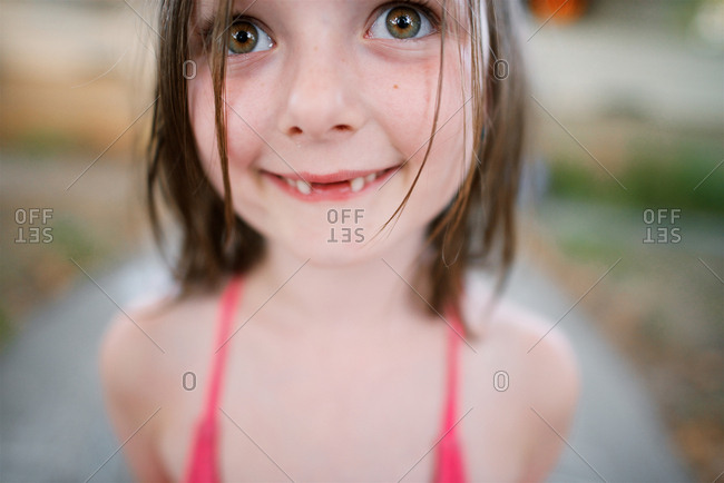 Girl smiling with missing teeth