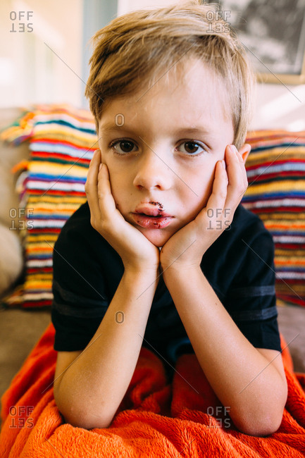 Boy with stitches on his upper lip sitting up with hands on chin