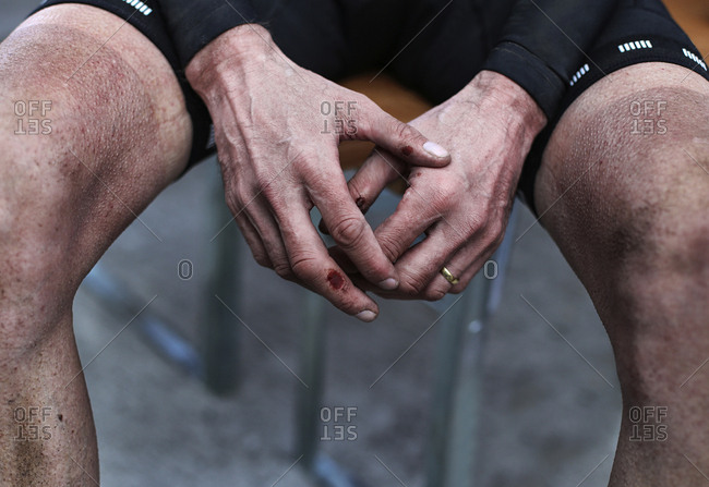 Midsection of injured male cyclist sitting on chair outdoors