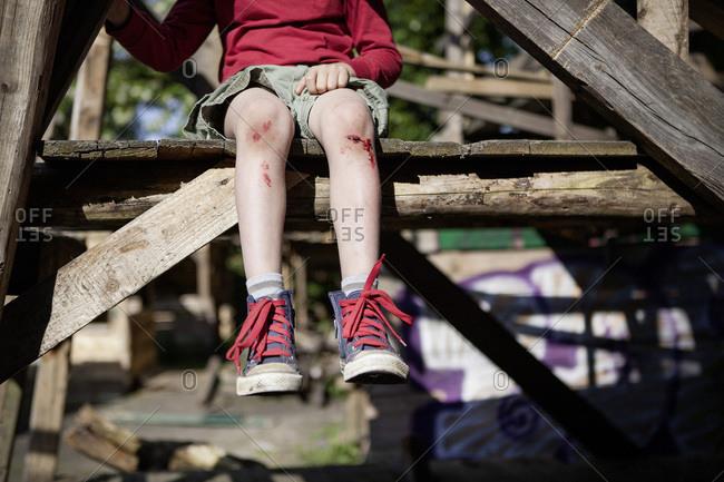 Germany- North Rhine Westphalia- Cologne- Boy injured in playground