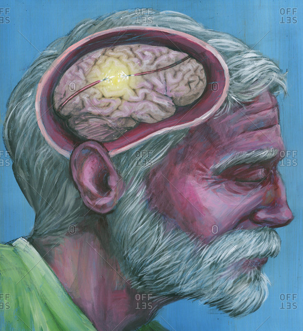 Illustration of senior man with Alzheimer's disease