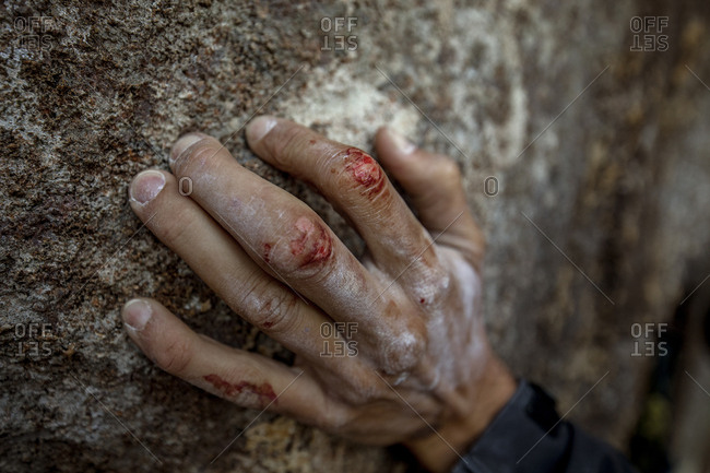 The cracked and injured hands from climber after having climbed the Totem Pole