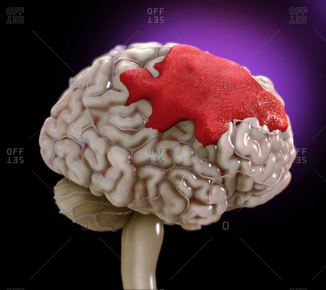 Brain hemorrhage, illustration