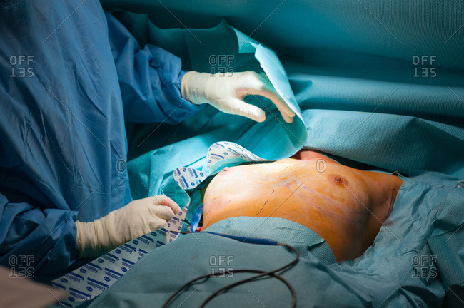 November 4, 2014: Report to the clinic of aesthetic surgery Mozart, Nice, France. Placement of breast prostheses, axillary, in a patient without a mammary gland, the surgeon photographs his chest before the operation