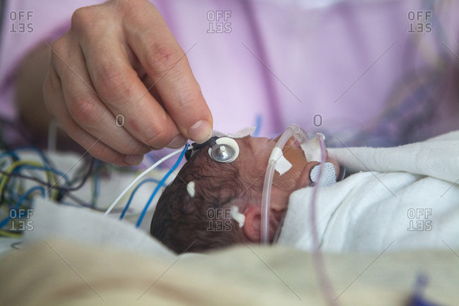 January 19, 2016: Reportage in a mobile functional exploration unit, a nurse intervenes in a neonatal service to carry out a check-up EEG on some premature babies. An extremely preterm baby, born at 25 weeks of amenorrhea, in France