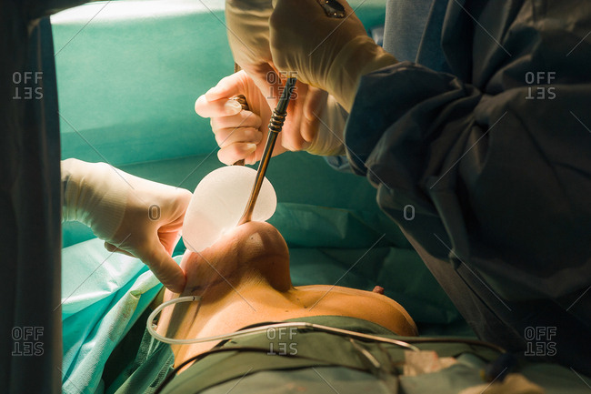 October 6, 2016: Reportage in the Mozart plastic surgery clinic in Nice, France. Fitting breast implants using the round block technique for plastic surgery