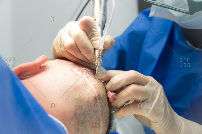 September 22, 2016: Reportage in the Mozart plastic surgery clinic in Nice, France. FUE (Follicular Unit Extraction) hair transplant on a patient who has already undergone two strip harvesting sessions which have left scars. FUE will avoid this. FUE involves harvesting individual follicular units using a hollow needle that is 0.9-1.2mm in diameter, and reimplanting them in the bald patch