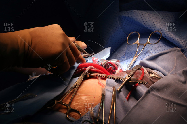 Operating Theater Cardiac Surgery