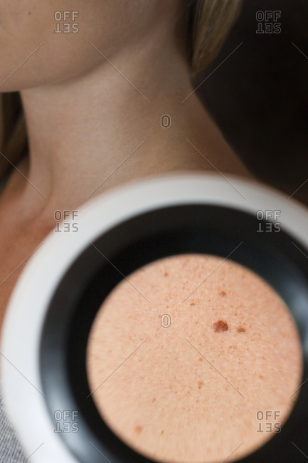 Mole being examined through dermatoscope