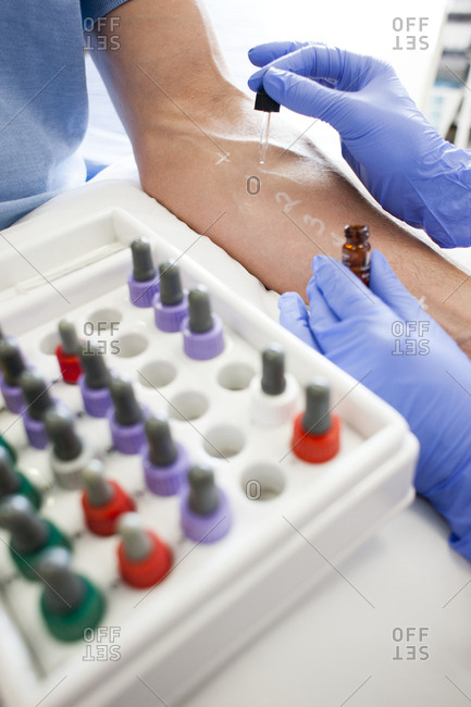 Patient undergoing a skin prick test