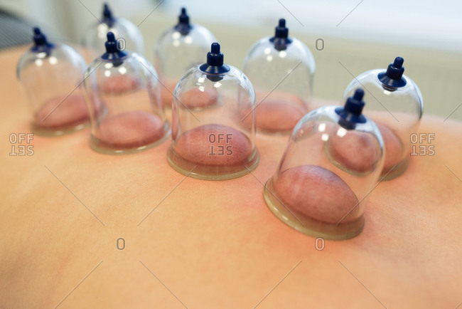 Woman lying on chest with cupping therapy on back in clinic