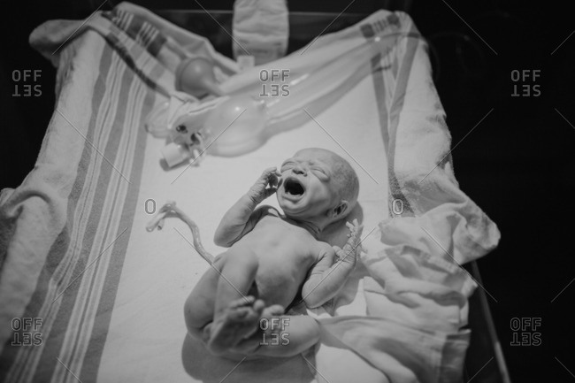 New born baby with umbilical still clamped wailing for mommy