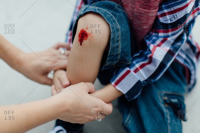 Mothers hands holding a little injured boy with a scraped knee