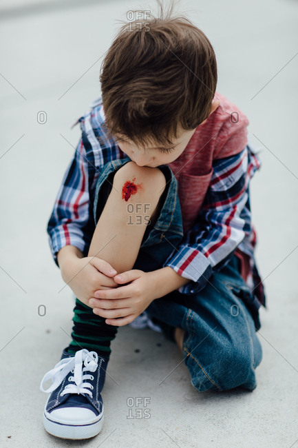 Portrait of an upset boy looking at his scraped knee