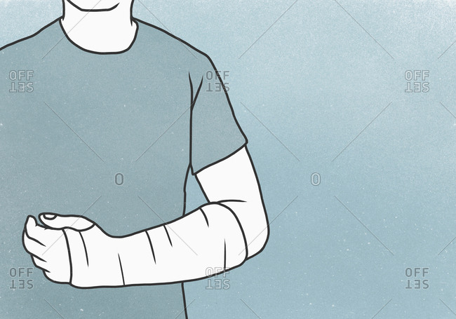 Midsection of man with fractured hand against blue background