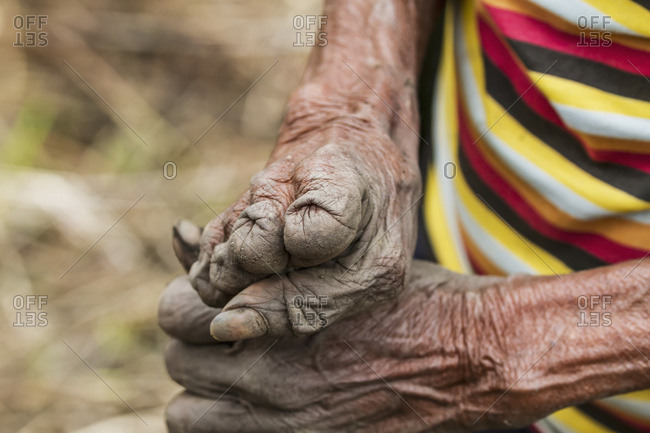 October 3, 2013: Hands Of A Yali Woman Who Cut Her Fingers Whilst Grieving Over The Death Of A Relative, Baliem Valley, Central Highlands Of Western New Guinea, Papua, Indonesia