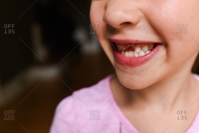 Close up of a little girl's mouth with missing teeth