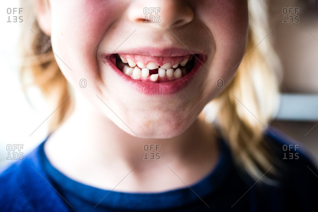 Little girl showing off wobbly front tooth