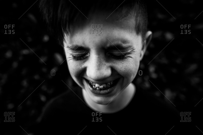 Close up of teenager with braces laughing