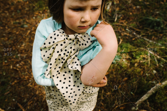 Little girl with a scraped elbow