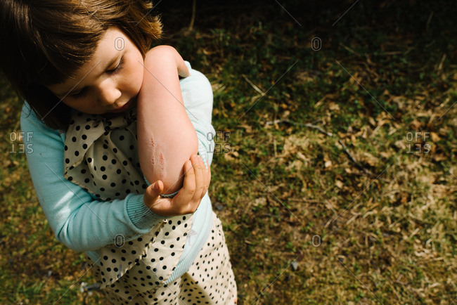 Little girl looking at her scraped elbow