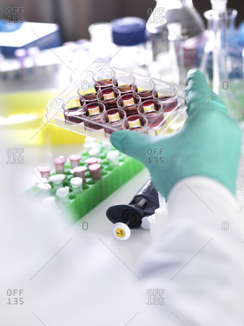 Cropped hand of scientist holding multiwell tray containing stem cells during cancer research in laboratory