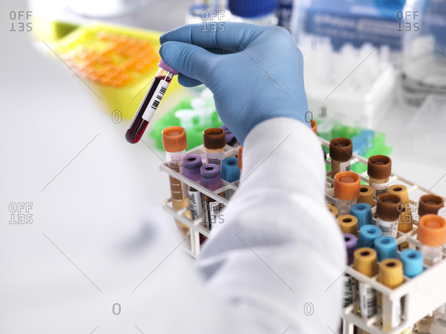 Close-up of laboratory technician holding blood sample for medical testing