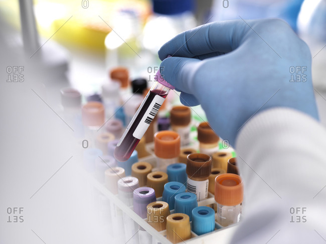 Cropped hand of laboratory technician holding blood sample for medical testing
