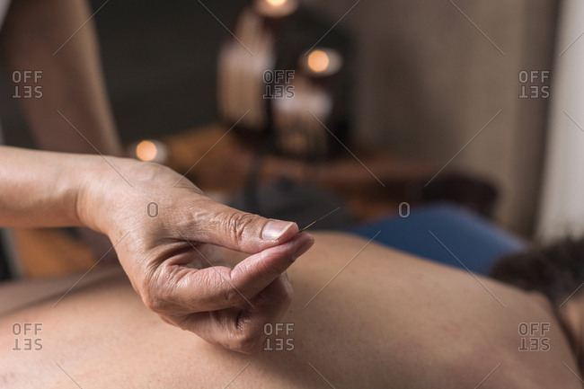 Therapist performing an acupuncture treatment on a patient woman