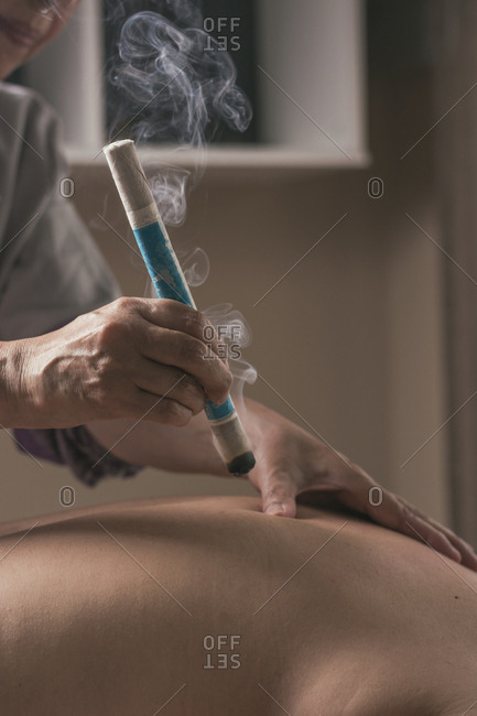 Therapist performing a moxibustion treatment. Chinese medicine therapy