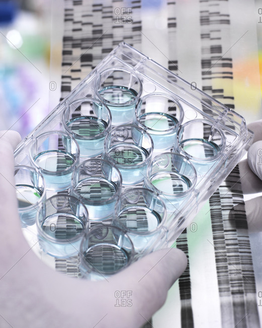 Genetic Research- Scientist holding a multi well plate and DNA gel revealing- the genetic make-up of the specimens