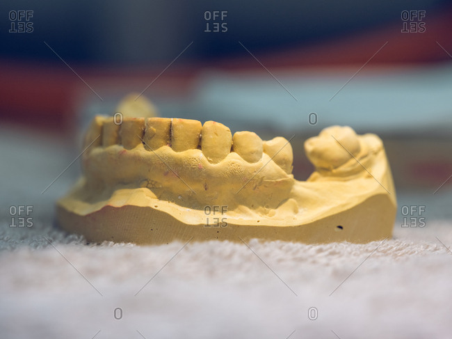 Close-up shot of denture mold lying in modern dental laboratory.