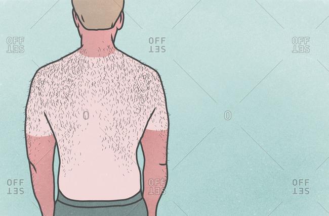 Sunburned man with hairy back on blue background