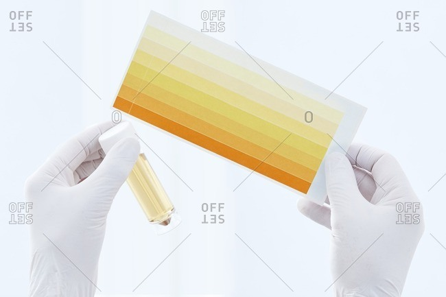 Urine sample in container and chart