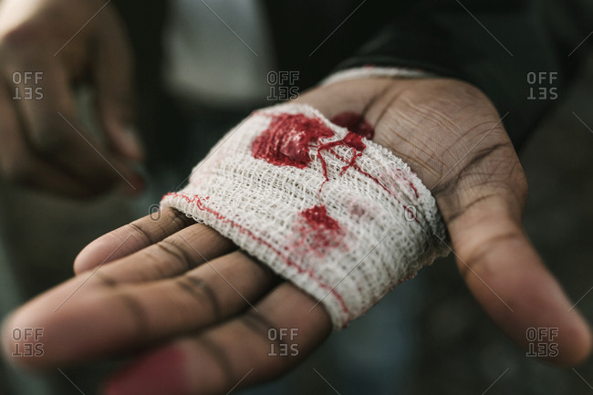 Detail of a hand with bandage cover of blood