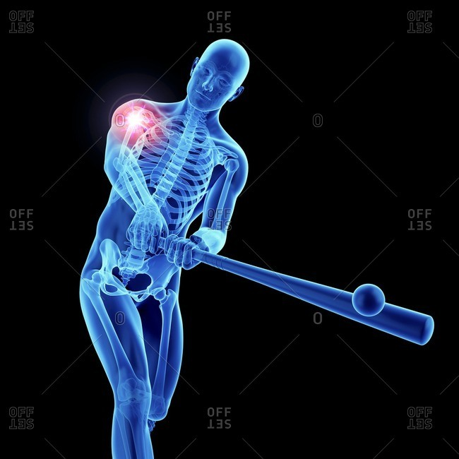 3d rendered illustration of an athlete's painful shoulder.