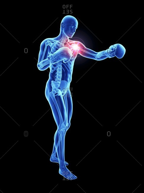3d rendered illustration of an athlete's painful shoulder.