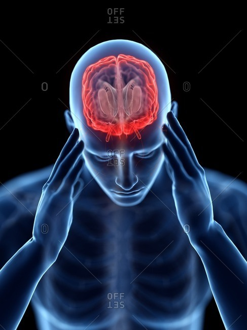3d rendered illustration of a man with a headache.