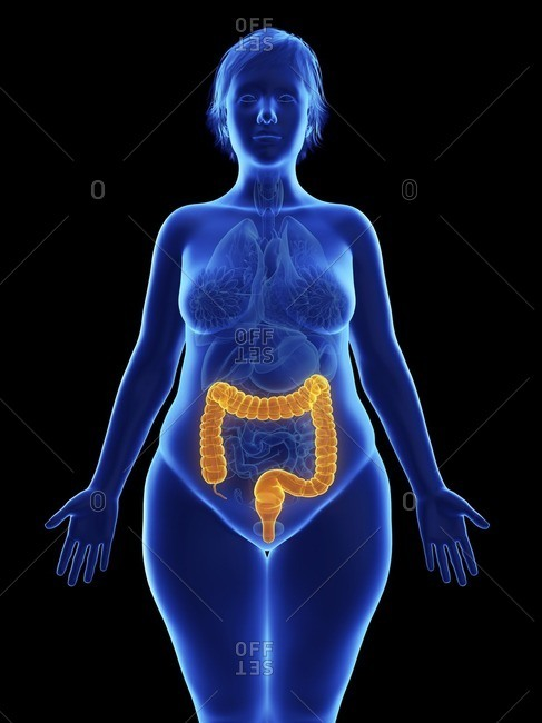 Illustration of an obese woman's colon.