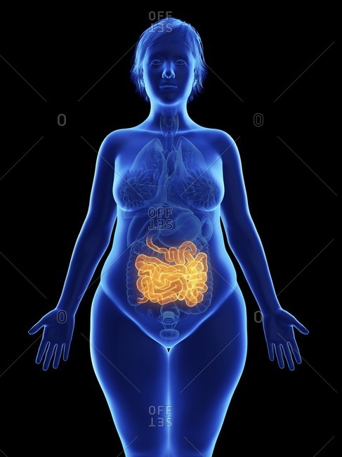 Illustration of an obese woman's small intestine.