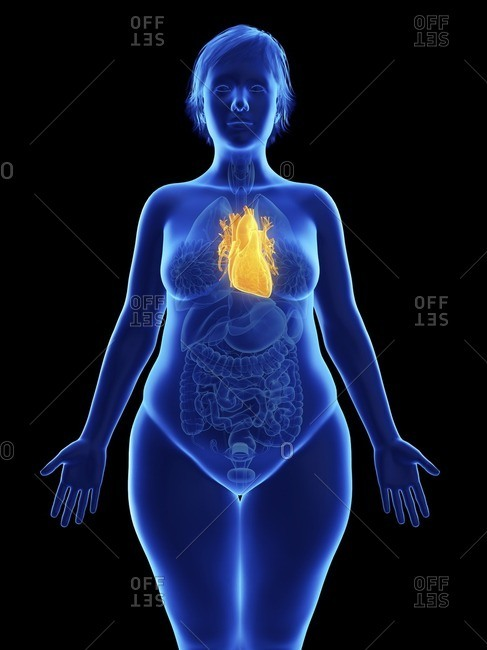 Illustration of an obese woman's heart.