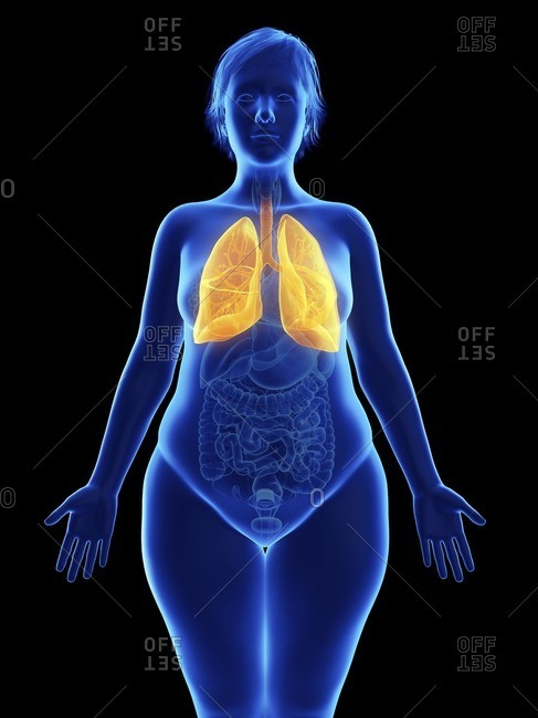 Illustration of an obese woman's lung.