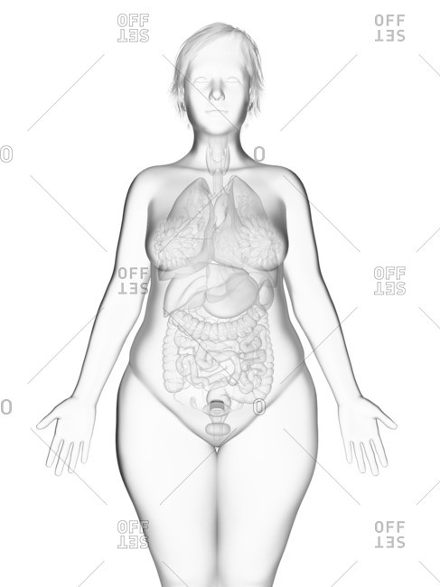Illustration of an obese woman's internal organs.