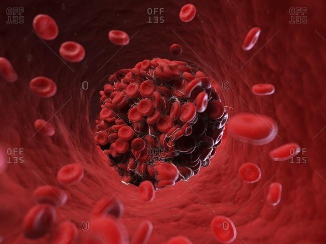 Illustration of a blood clot.