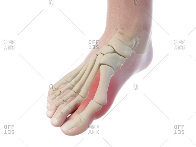 Illustration of a bunion.