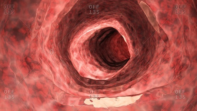 Illustration of an inflamed colon.