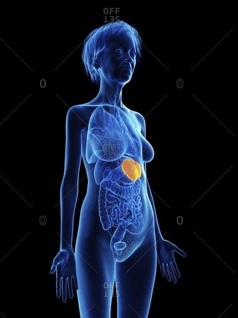 Illustration of an old woman's spleen.