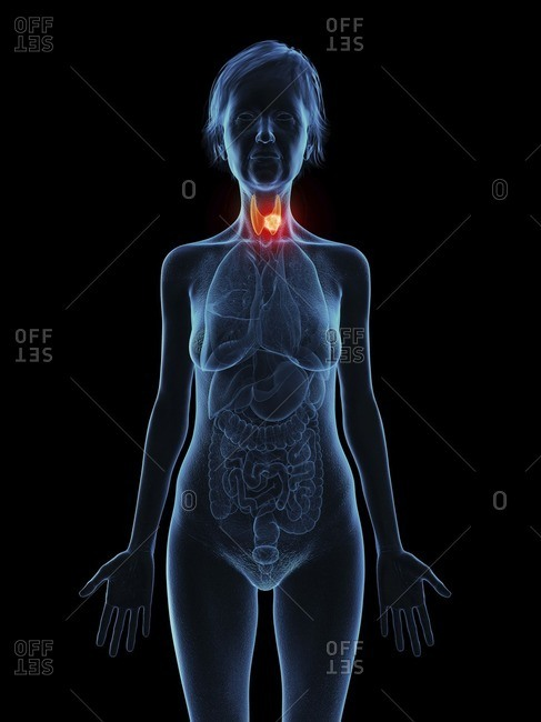 Illustration of an old woman's thyroid gland tumor.