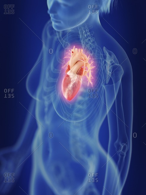 Illustration of an inflamed heart.